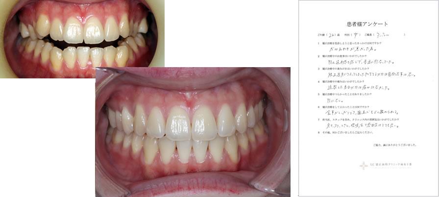UC矯正歯科クリニック麻布十番の矯正治療体験談13