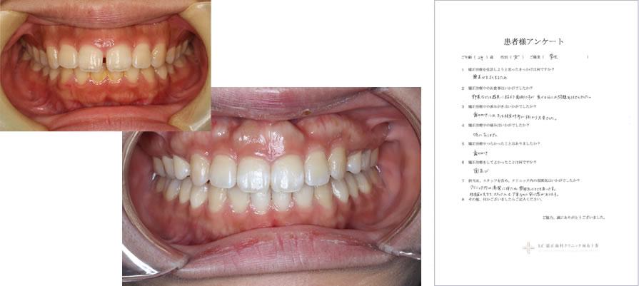 UC矯正歯科クリニック麻布十番の矯正治療体験談17
