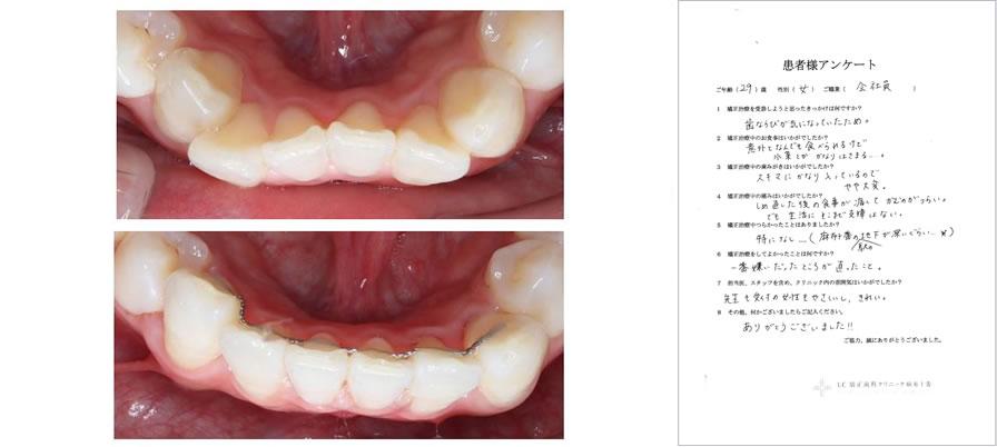 UC矯正歯科クリニック麻布十番の矯正治療体験談11