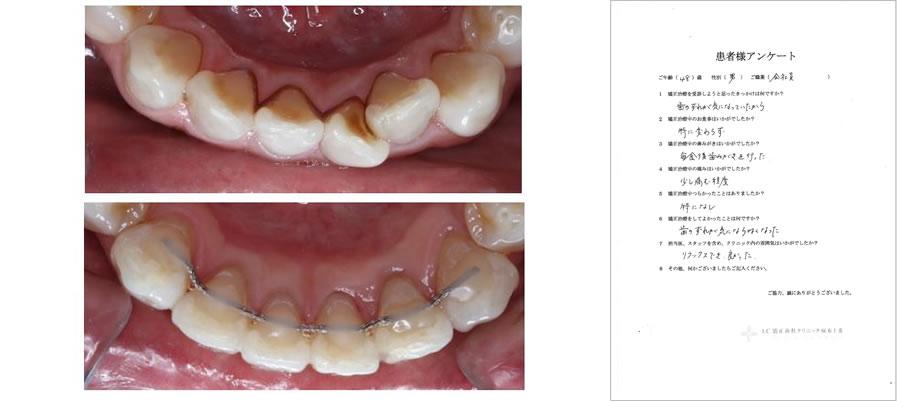 UC矯正歯科クリニック麻布十番の矯正治療体験談14