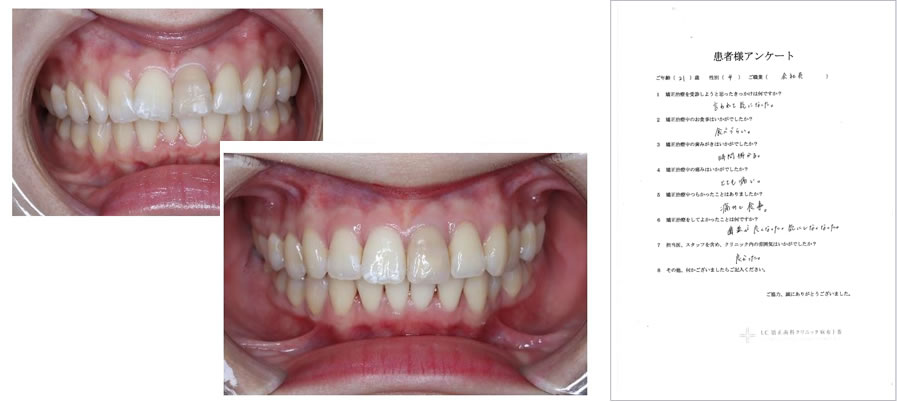 UC矯正歯科クリニック麻布十番の矯正治療体験談15