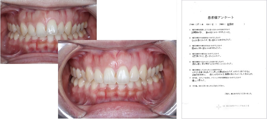 UC矯正歯科クリニック麻布十番の矯正治療体験談21