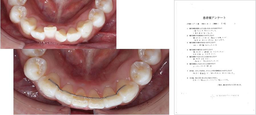 UC矯正歯科クリニック麻布十番の矯正治療体験談23