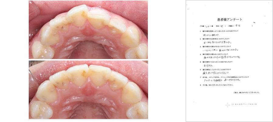 UC矯正歯科クリニック麻布十番の矯正治療体験談31