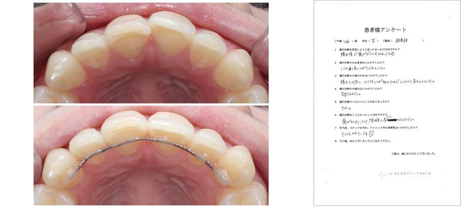 UC矯正歯科クリニック麻布十番の矯正治療体験談33