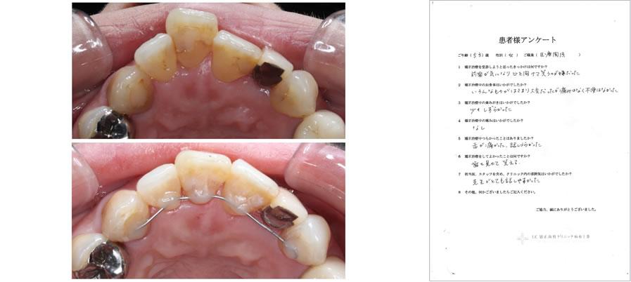 UC矯正歯科クリニック麻布十番の矯正治療体験談35