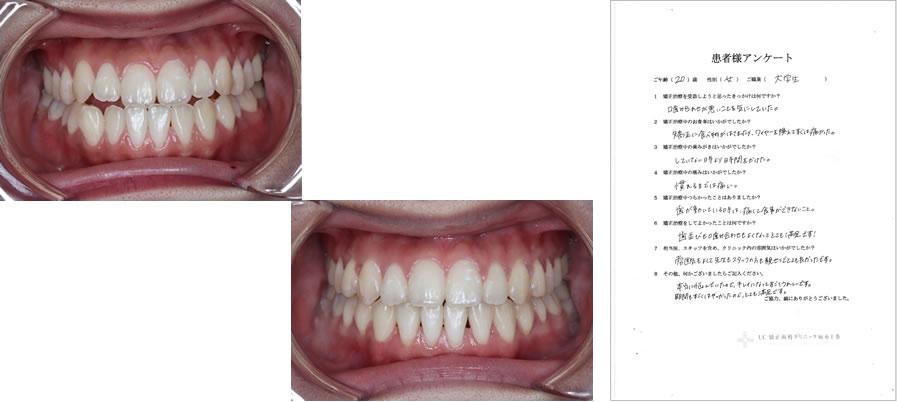 UC矯正歯科クリニック麻布十番の矯正治療体験談36
